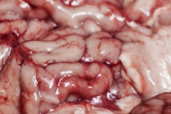 mozekm